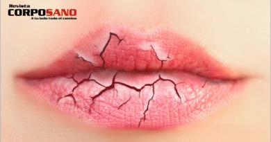 5 consejos para evitar los labios partidos